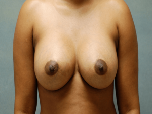 Manhattan Breast Augmentation after 5